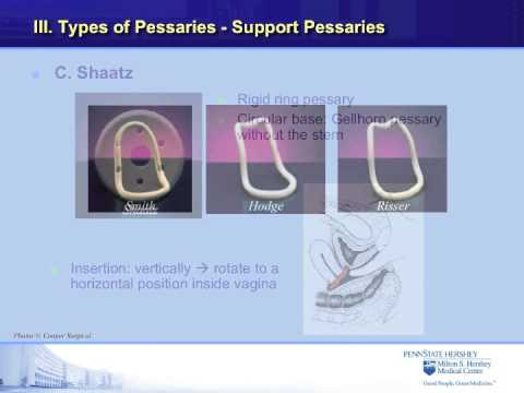 The vaginal pessary for prolapse: An educational video