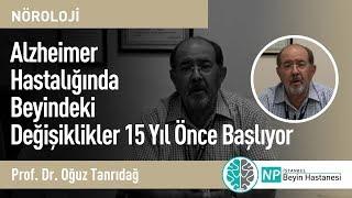 Alzheimer Hastalığında Beyindeki Değişiklikler 15 Yıl Önce Başlıyor-Prof. Dr.  Oğuz Tanrıdağ