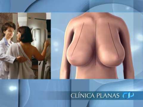 Reducción de Mamas   Tratamientos de Clínica Planas Music Videos