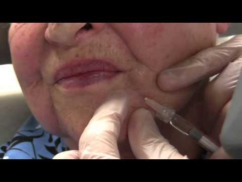 Dermatologist NYC Dr. Ron Shelton - Belotero
