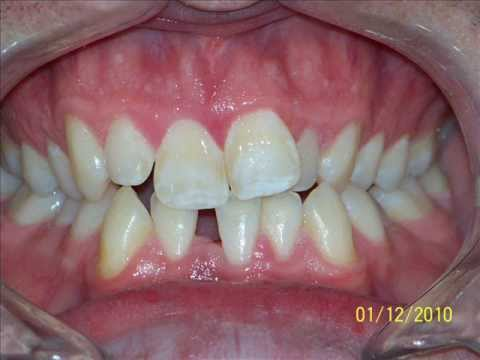 Invisalign Before and After pictures - Nicholas Sharkey