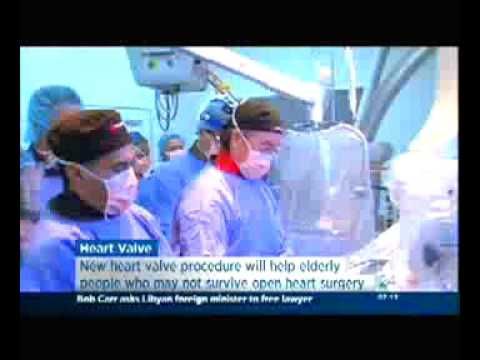 Melbourne's MonashHeart leads heart valve trial - ABC News 24 Breakfast
