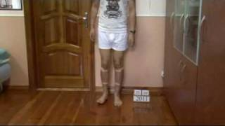 Bow legs correction treatment - China patient experience