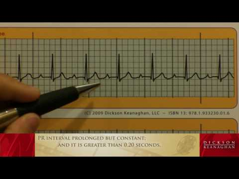 EKG Training: An Introduction to Bradycardia - Heart Blocks, Part 1 of 3