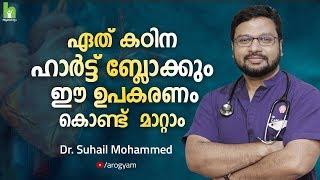ഏതു കഠിന ഹാർട്ട് ബ്ലോക്കുകളും ഈ ഉപകരണം കൊണ്ട് മാറ്റാം   Malayalam Health Tips   Arogyam