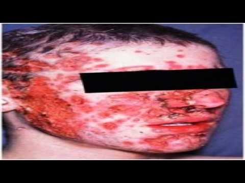 How to get rid of acne overnight- Overnight Acne cure