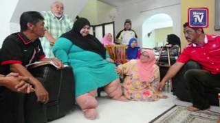 Wanita derita penyakit Morbid Obesity