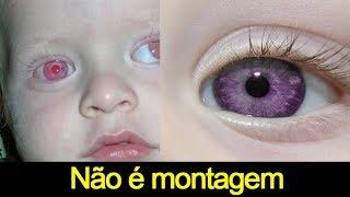 10 CORES DE OLHOS MAIS RARAS DO MUNDO