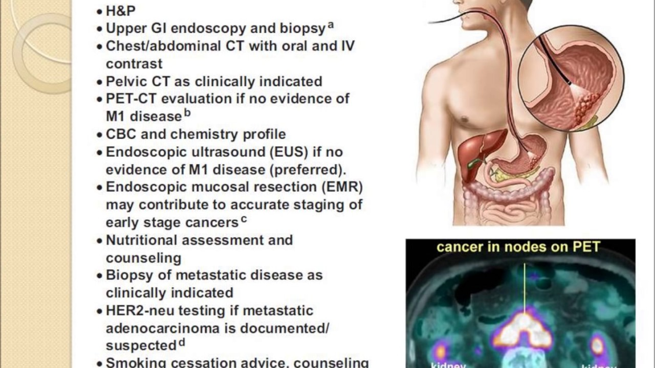how to know if you have stomach cancer