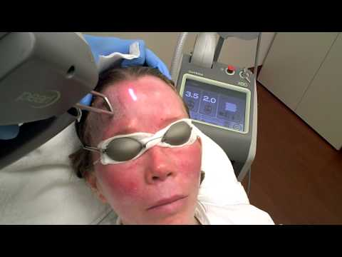 Mini Face Lift with Pearl Laser
