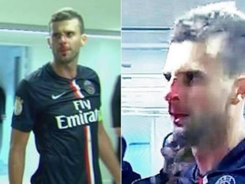 Thiago Motta is HEADBUTTED by Brandão (BROKEN NOSE) | PSG vs Bastia