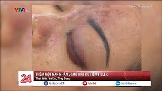 Thêm một nạn nhân bị mù mắt do tiêm filler - Tin Tức VTV24