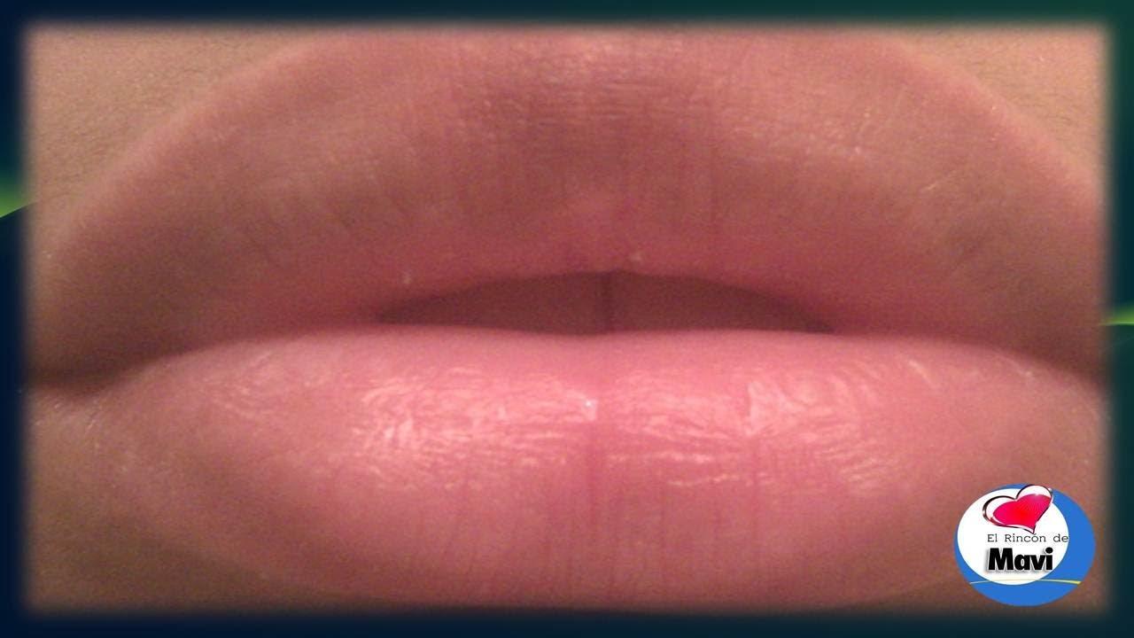 Picor en los labios