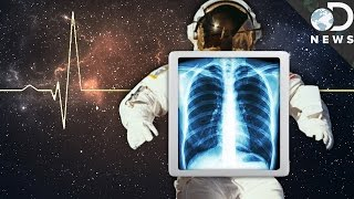 Space Is Trying To Kill Us! How Astronauts Survive
