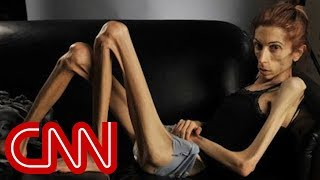 Anorexic woman's dramatic transformation