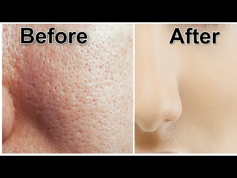 How To Get Rid Of Open Pores Naturally