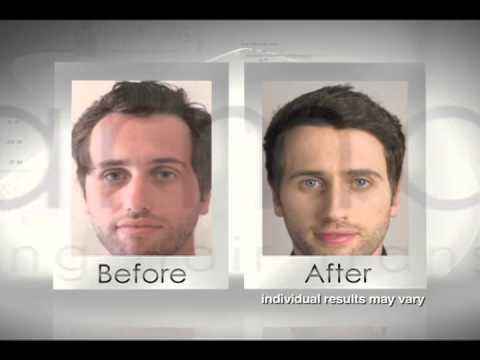 Alvi Armani - New Hair Transplant Technology - Follicular Unit Extraction Hair Transplant
