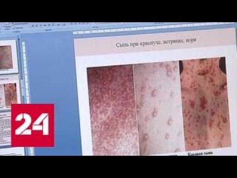 Вспышка кори в Москве: не эпидемия, но задуматься стоит
