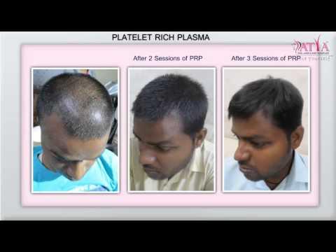 Plasma PRP-Hair Loss Treatment, Hair Transplantation Clinic in Delhi
