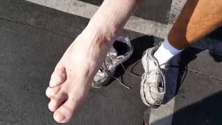 147.435 YDO shows us his deformed foot