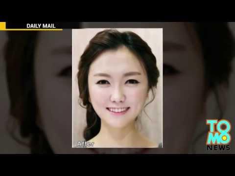 Насколько меняет Пластика в Корее