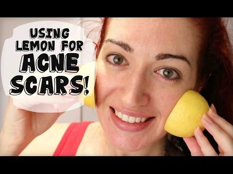 FADE ACNE SCARS WITH LEMON! Naturally Lighten Skin At Home! *UPDATED!*