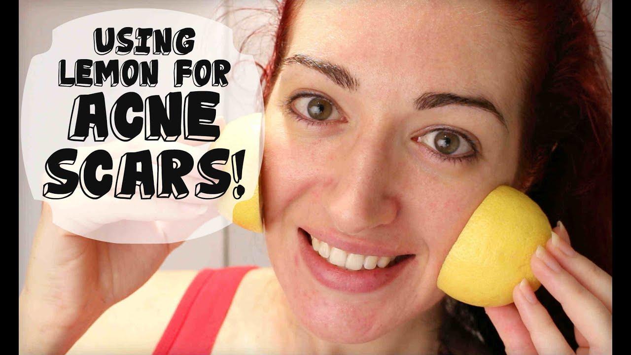 Lemon for acne scars review