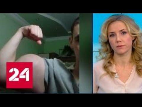 Химическому качку из Пятигорска грозит ампутация рук - Россия 24