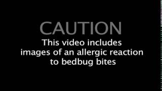 Lincoln woman's video shows bedbugs in Family Court