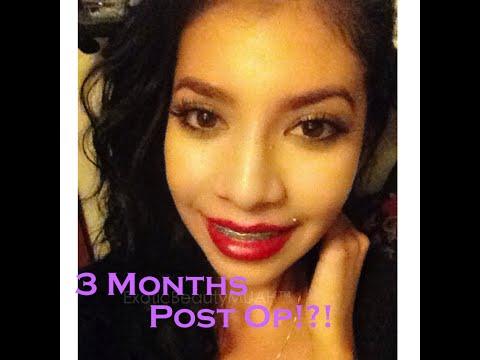 Double Jaw Surgery   3 months Post Op   Orthognathic   Underbite Journey Part 10