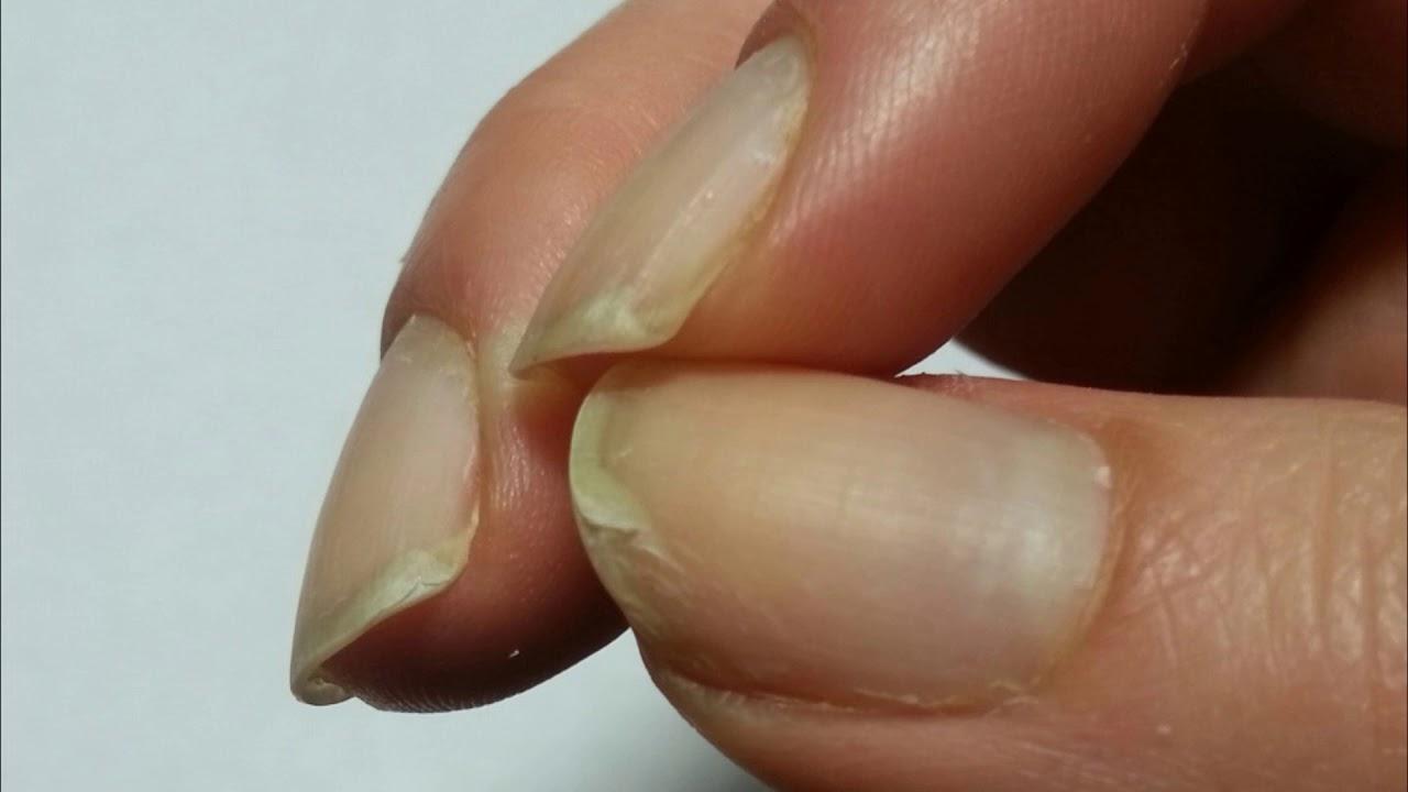 Почему слоятся ногти на руках лечение в домашних условиях 519