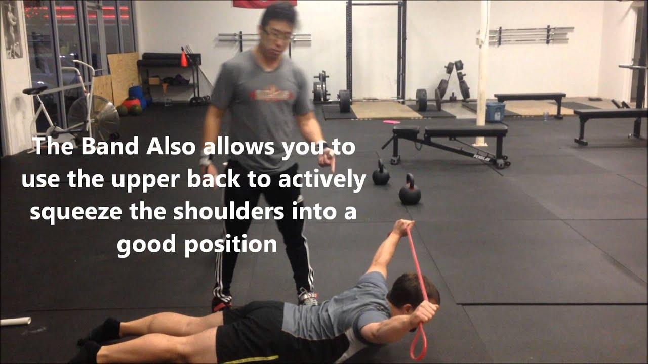 Shoulder Dislocations Band Banded Shoulder Dislocation