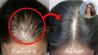 মাত্র ৫ দিনে চুল পড়া রোধ করে লম্বা ও খুসকি মুক্ত করুন !!! Proven Home Remedy For Hair Growth