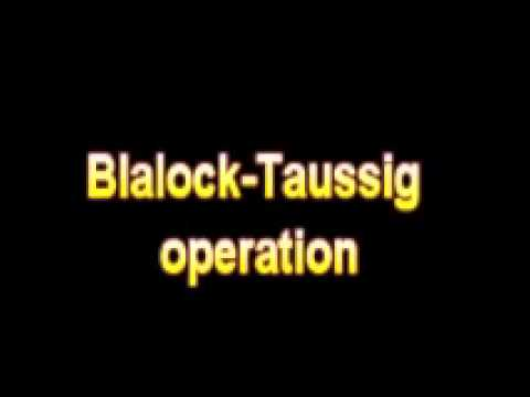 What Is The Definition Of Blalock Taussig operation Medical Dictionary Free Online