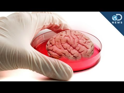 "Mini Human ""Brain"" Grown In Lab"