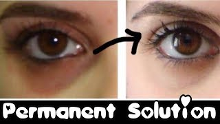How to Remove Dark Circles Naturally Permanently - in 3 days 😈JSuper Kaur