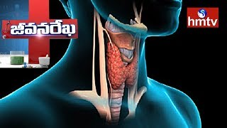 Treatment For Thyroid Problem by Dr.Sai Kumar | Star Homeopathy | Jeevan Rekha | hmtv