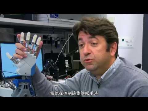 有觸感的義肢:仿生臂 (中文字幕) Amputee Feels in Real-Time with Bionic Hand