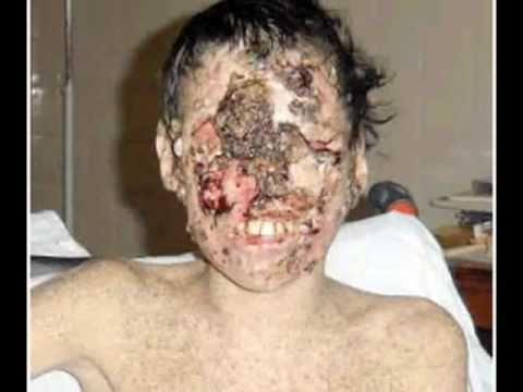 Enfermedades Raras enfermedades raras - R...