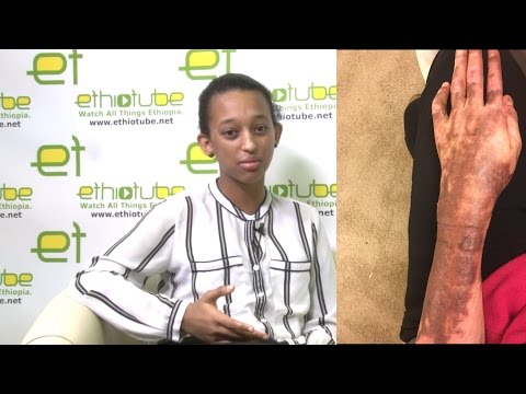 Young Ethiopian Maryland Fire Survivor Bitseat Getaneh Shares Story  January 2017