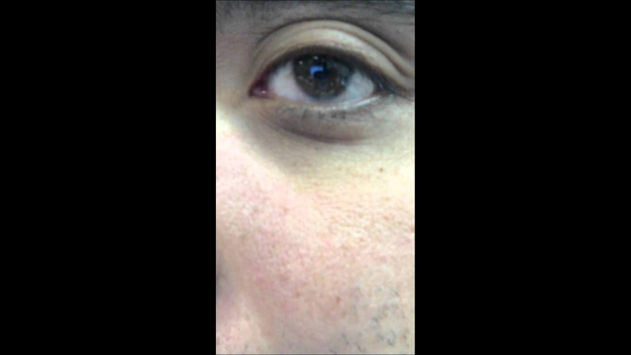 Lower Left Eyelid Twitching. - YouTube