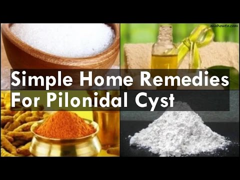 How to Treat a Pilonidal Cyst