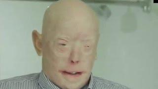顔の皮膚移植手術で超劇的に回復!重度の火傷を負った消防士が話題に