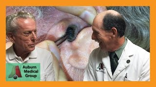 Fastest Stuck Hearing Aid Dome Removal | Auburn Medical Group
