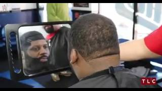 Hairline fail try not to laugh, Extreme