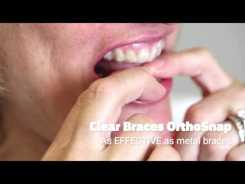 clear braces orthosnap
