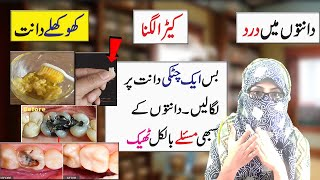 Toothache Teeth / cavity treatment at home | Danto mein dard ka ilaj | Anam Home Remedy