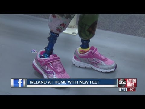 Ireland Nugent goes home with new prosthetic legs