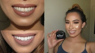 TEETH WHITENING | SmileBrilliant Review