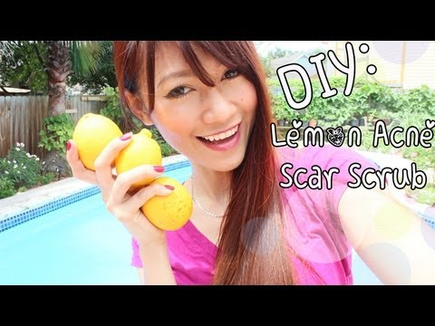 DIY Beauty: Lemon. Honey. Sugar Scrub {Acne & Scar Removal}